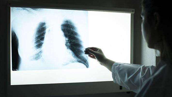 KOAH hastalarına koronavirüs uyarısı