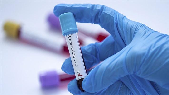 Kovid-19'la enfekte olan erkekler kadınlardan daha fazla antikor üretiyor
