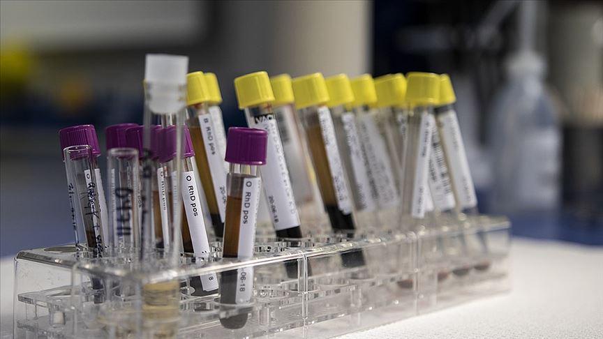 'Hepatit sebebiyle yılda 1,4 milyon kişi ölüyor'